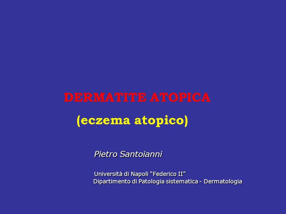 DERMATITE ATOPICA (eczema atopico) Pietro Santoianni