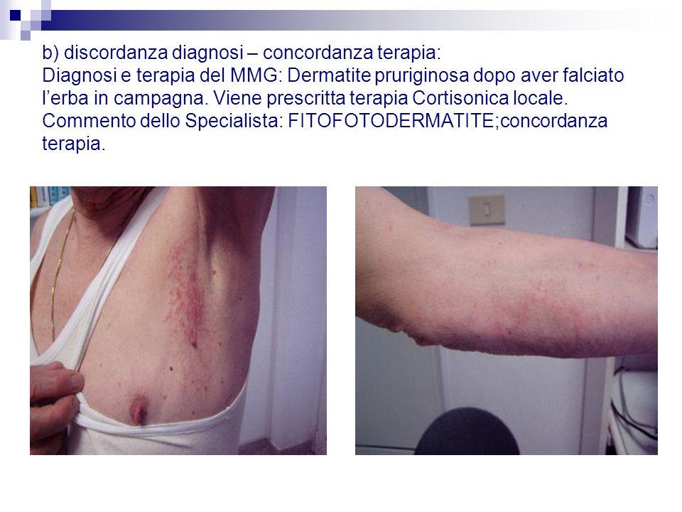 b) discordanza diagnosi – concordanza terapia: Diagnosi e terapia del MMG: Dermatite pruriginosa dopo aver falciato l'erba in campagna.