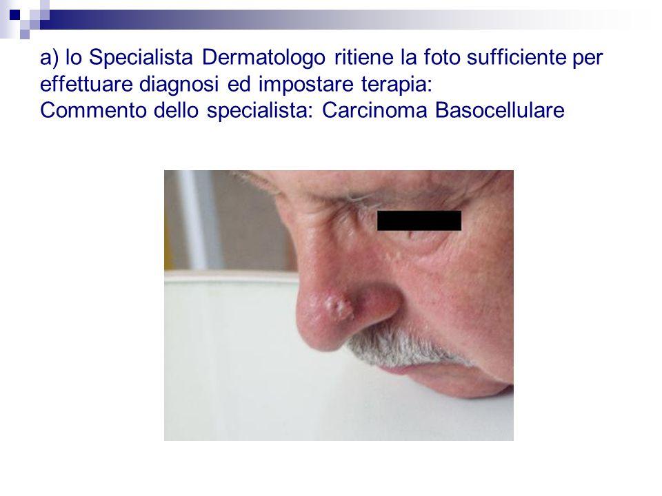 a) lo Specialista Dermatologo ritiene la foto sufficiente per effettuare diagnosi ed impostare terapia: Commento dello specialista: Carcinoma Basocellulare
