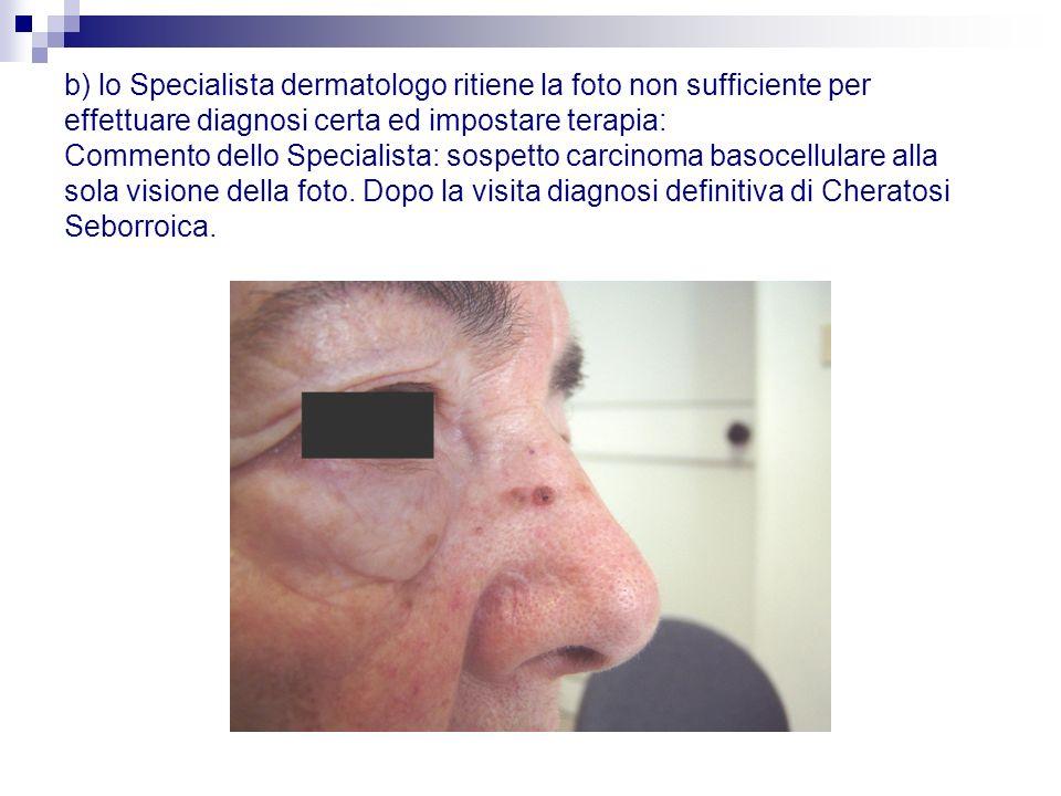b) lo Specialista dermatologo ritiene la foto non sufficiente per effettuare diagnosi certa ed impostare terapia: Commento dello Specialista: sospetto carcinoma basocellulare alla sola visione della foto.
