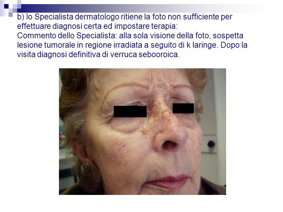 b) lo Specialista dermatologo ritiene la foto non sufficiente per effettuare diagnosi certa ed impostare terapia: Commento dello Specialista: alla sola visione della foto, sospetta lesione tumorale in regione irradiata a seguito di k laringe.