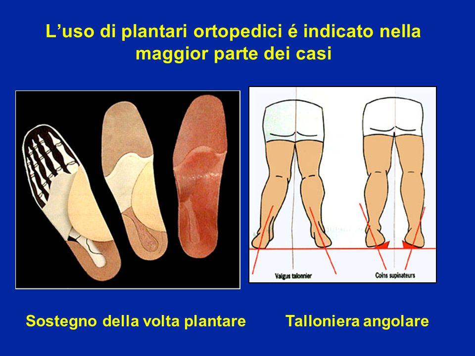 L'uso di plantari ortopedici é indicato nella maggior parte dei casi