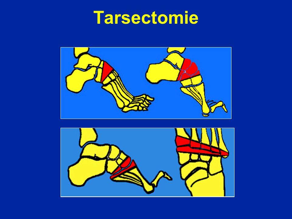 Tarsectomie