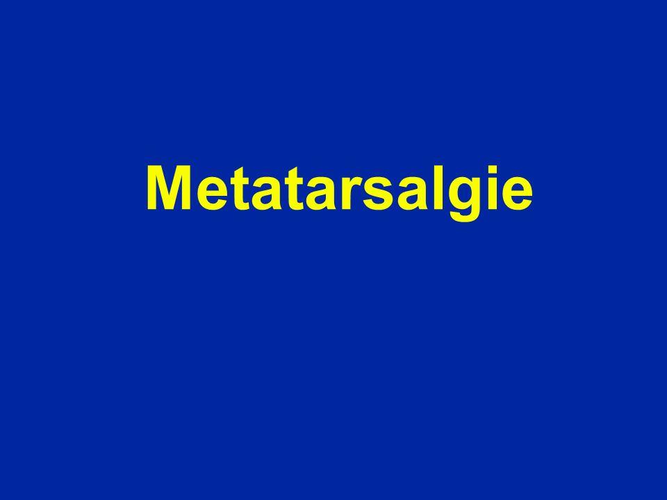 Metatarsalgie