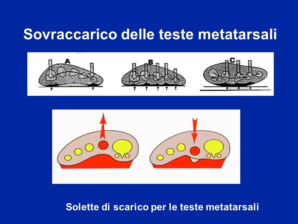 Sovraccarico delle teste metatarsali