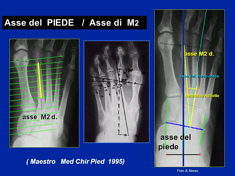 ( Maestro Med Chir Pied 1995)