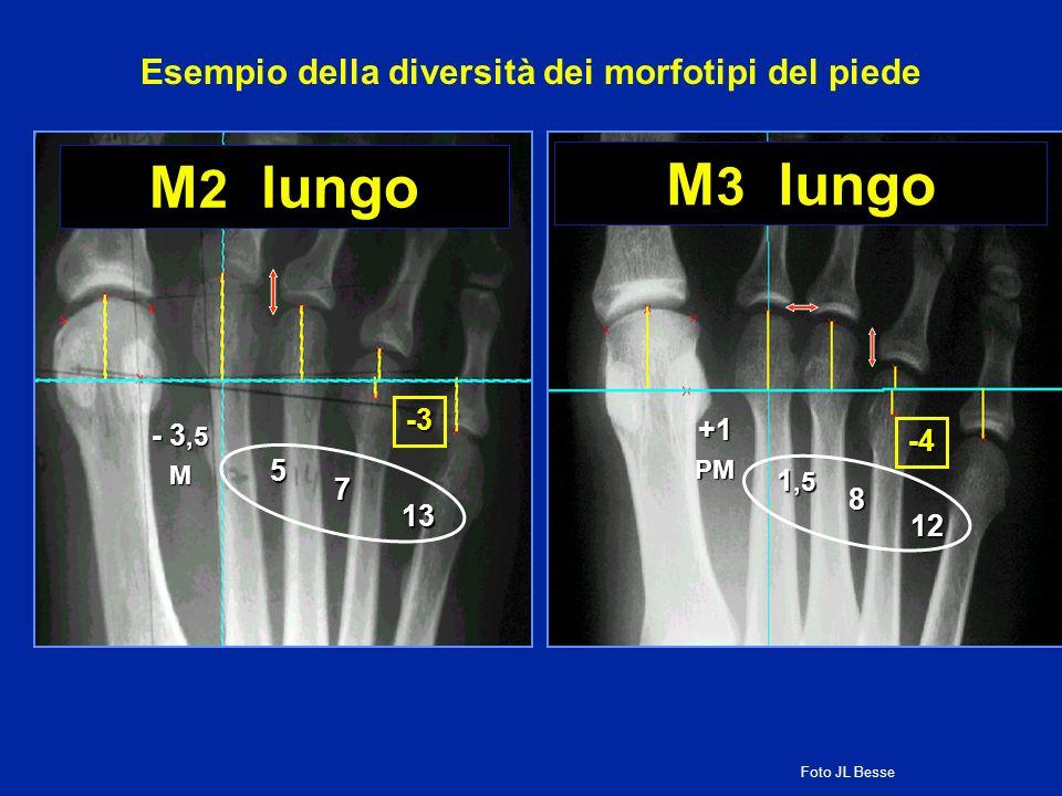 Esempio della diversità dei morfotipi del piede
