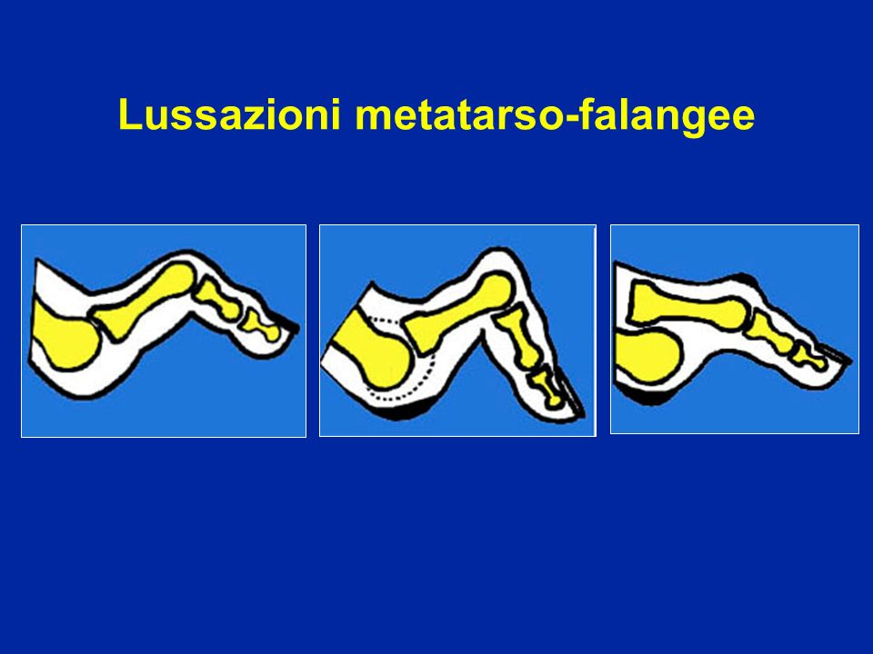 Lussazioni metatarso-falangee
