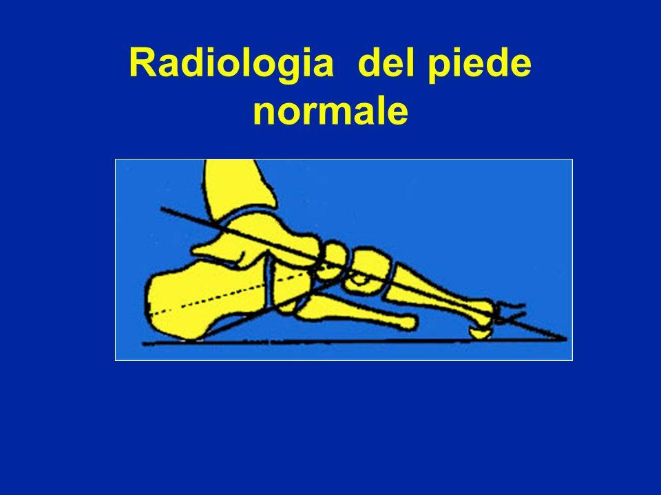 Radiologia del piede normale