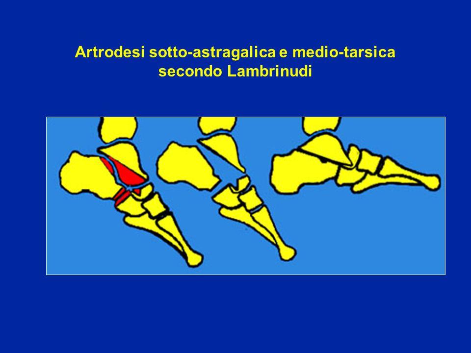 Artrodesi sotto-astragalica e medio-tarsica secondo Lambrinudi