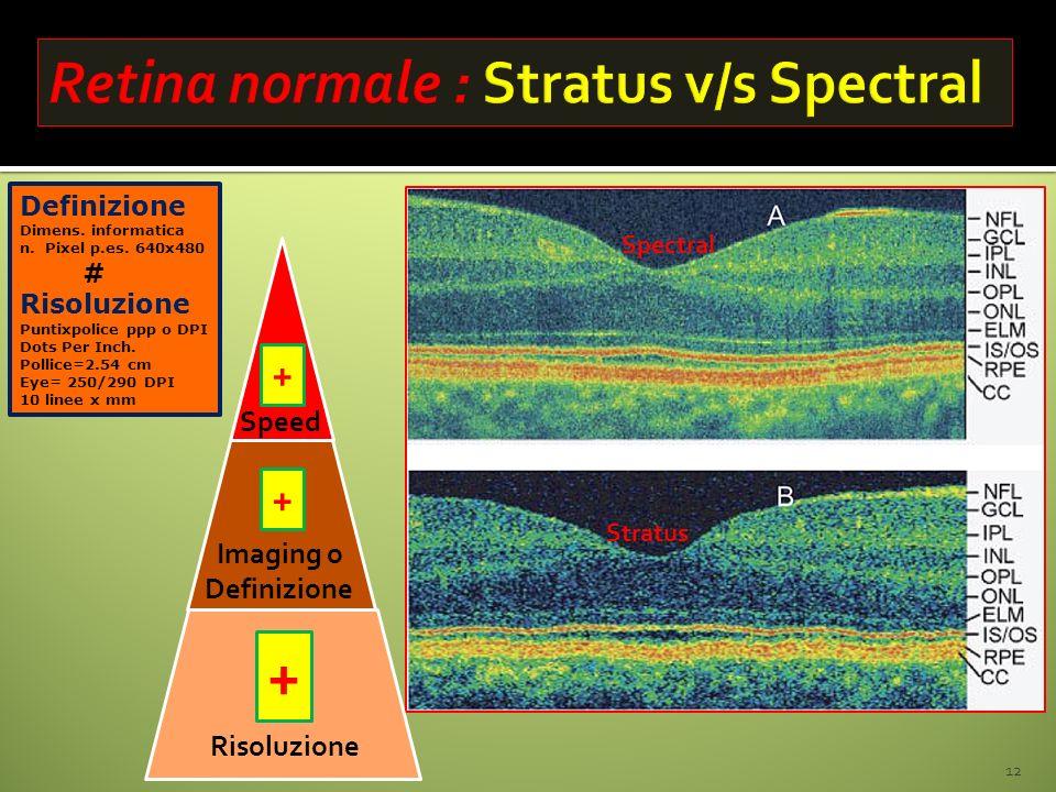 Retina normale : Stratus v/s Spectral