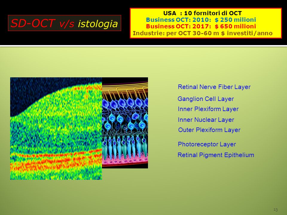 SD-OCT v/s istologia Retinal Nerve Fiber Layer Ganglion Cell Layer