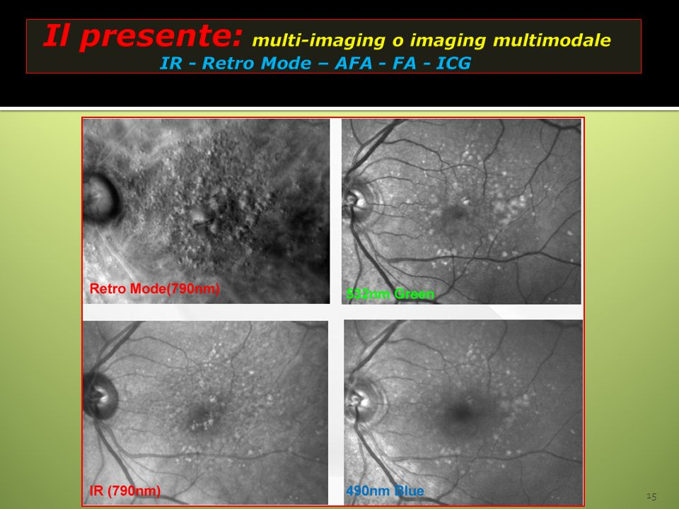 Il presente: multi-imaging o imaging multimodale IR - Retro Mode – AFA - FA - ICG