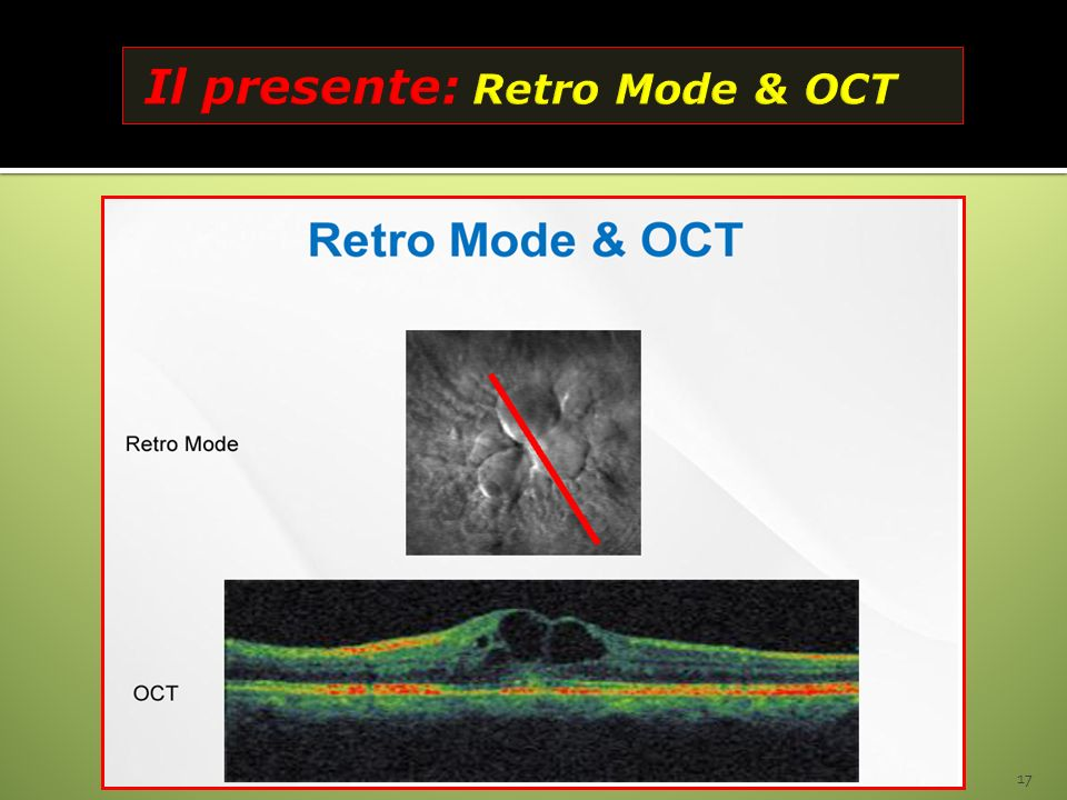 Il presente: Retro Mode & OCT