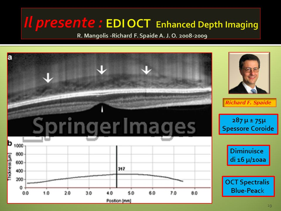 Il presente : EDI OCT Enhanced Depth Imaging R. Mangolis -Richard F