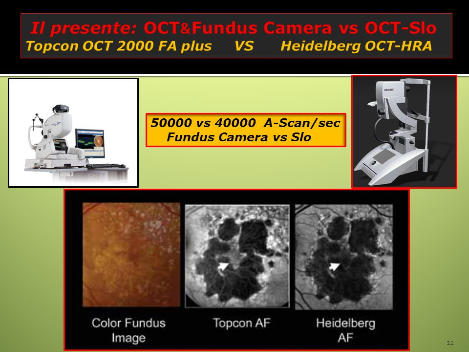 Il presente: OCT&Fundus Camera vs OCT-Slo Topcon OCT 2000 FA plus VS Heidelberg OCT-HRA
