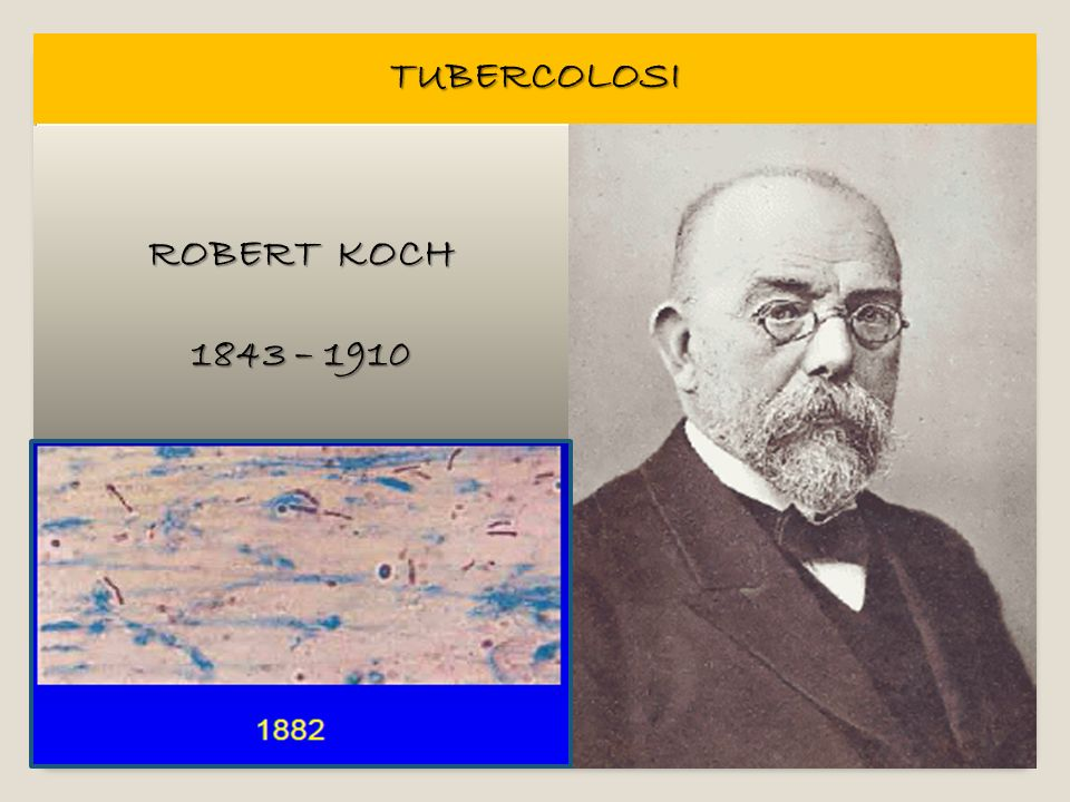 TUBERCOLOSI ROBERT KOCH 1843 – 1910