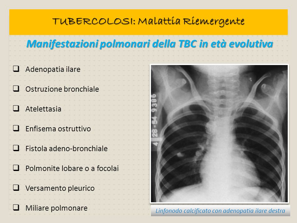 TUBERCOLOSI: Malattia Riemergente