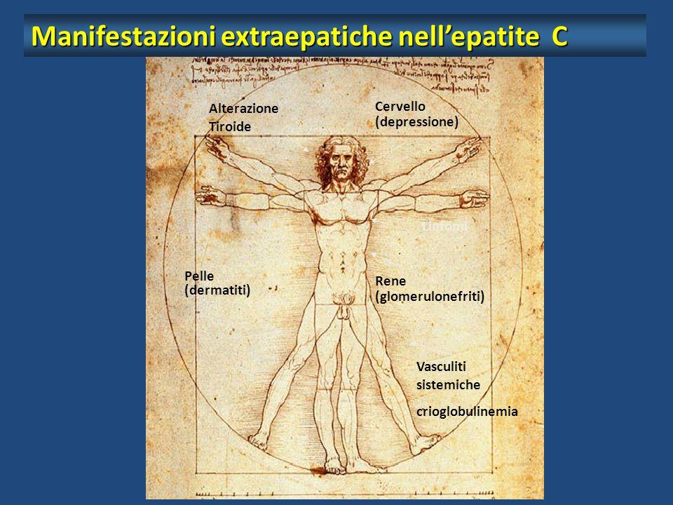 Manifestazioni extraepatiche nell'epatite C