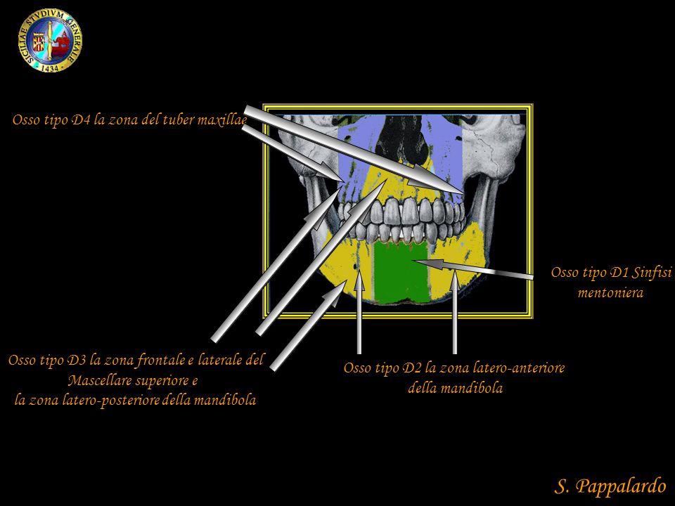 S. Pappalardo Osso tipo D4 la zona del tuber maxillae