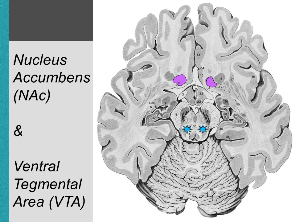 human accumbens & VTA Nucleus Accumbens (NAc) & Ventral Tegmental Area (VTA)