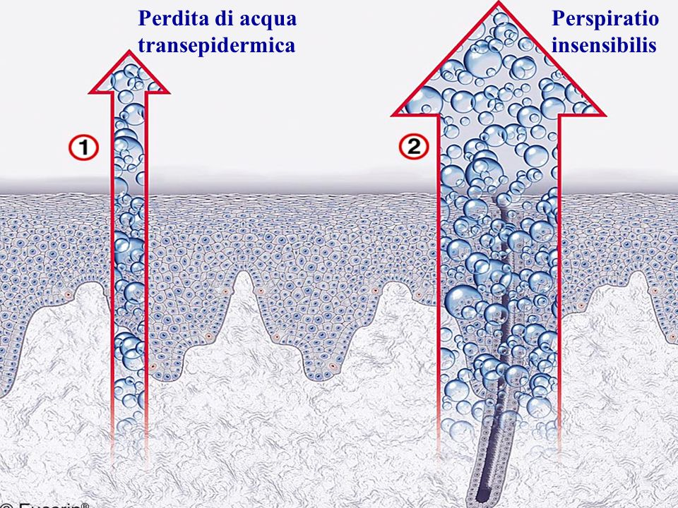 Perdita di acqua transepidermica