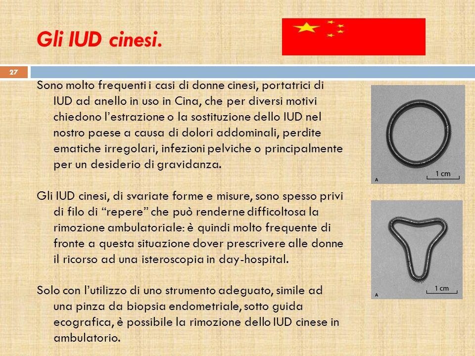 Gli IUD cinesi.