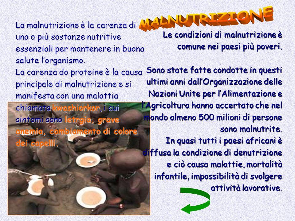 MALNUTRIZIONE La malnutrizione è la carenza di una o più sostanze nutritive essenziali per mantenere in buona salute l'organismo.