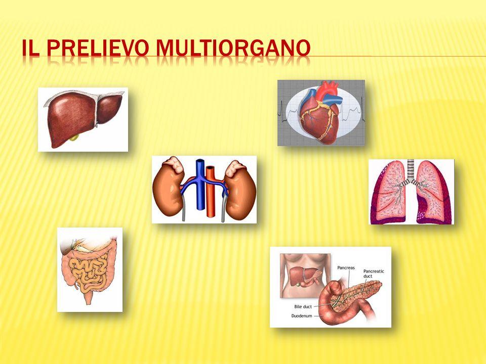 Il prelievo multiorgano