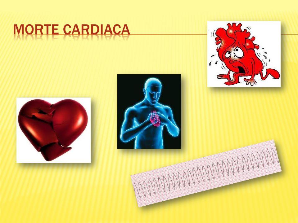 Morte cardiaca