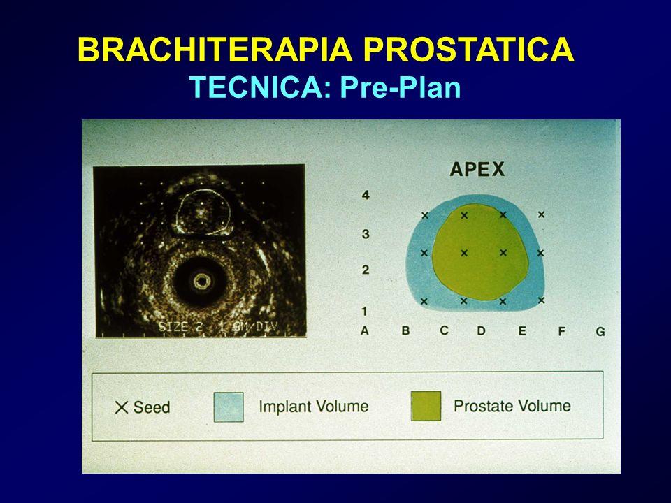 BRACHITERAPIA PROSTATICA TECNICA: Pre-Plan