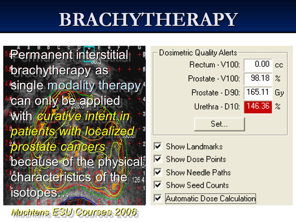 Permanent interstitial brachytherapy as single modality therapy can only be applied with curative intent in patients with localized prostate cancers because of the physical characteristics of the isotopes…