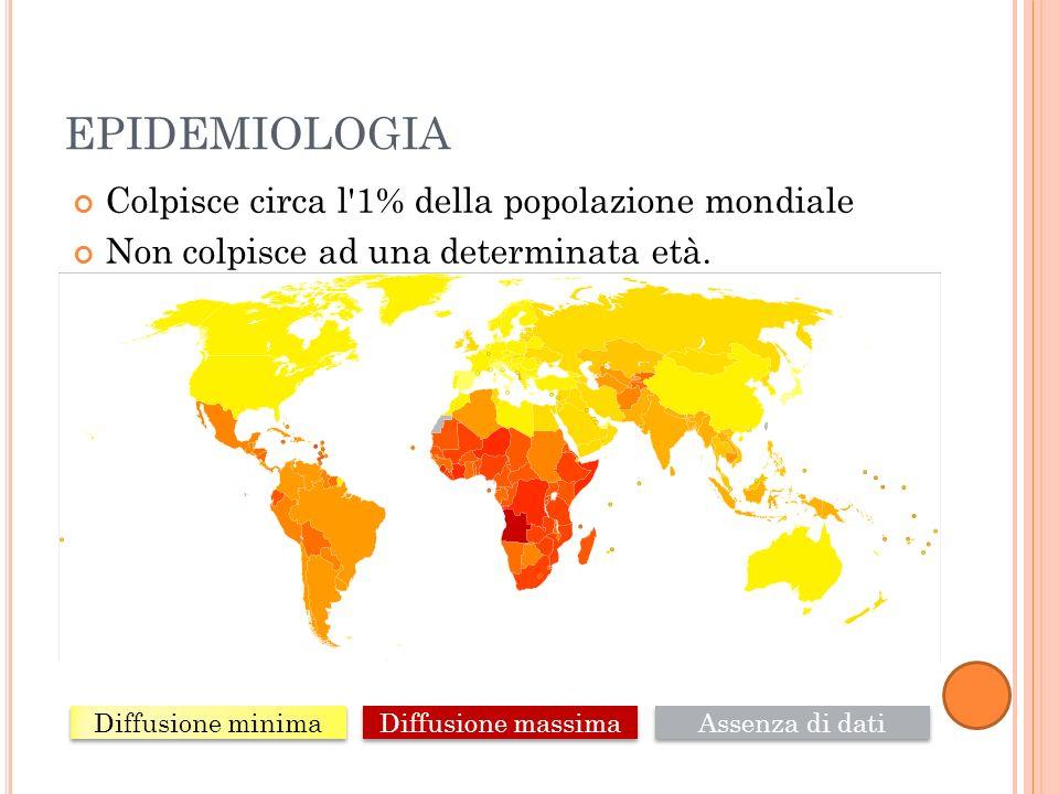 EPIDEMIOLOGIA Colpisce circa l 1% della popolazione mondiale