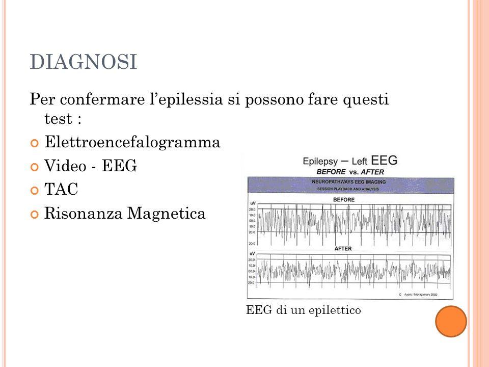 DIAGNOSI Per confermare l'epilessia si possono fare questi test :