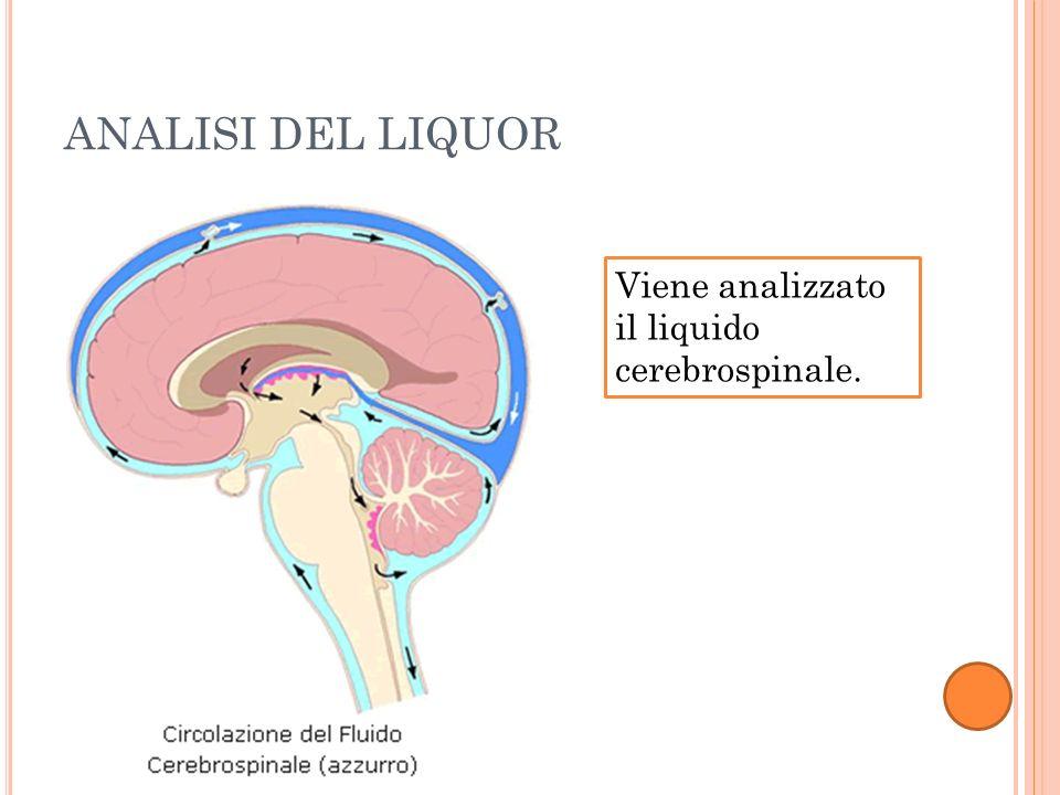 ANALISI DEL LIQUOR Viene analizzato il liquido cerebrospinale.