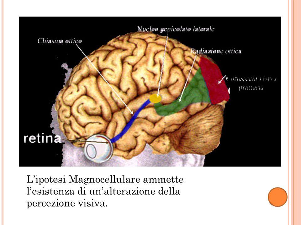 L'ipotesi Magnocellulare ammette l'esistenza di un'alterazione della percezione visiva.