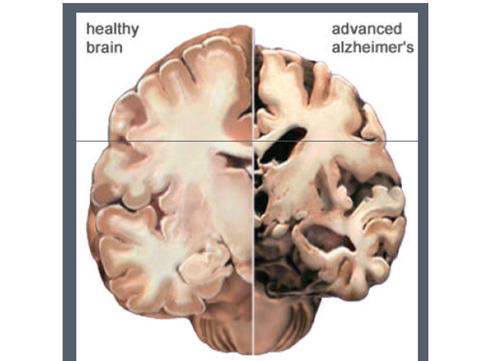 Dove inizia la degenerazione Nella demenza di Alzheimer e nelle altre