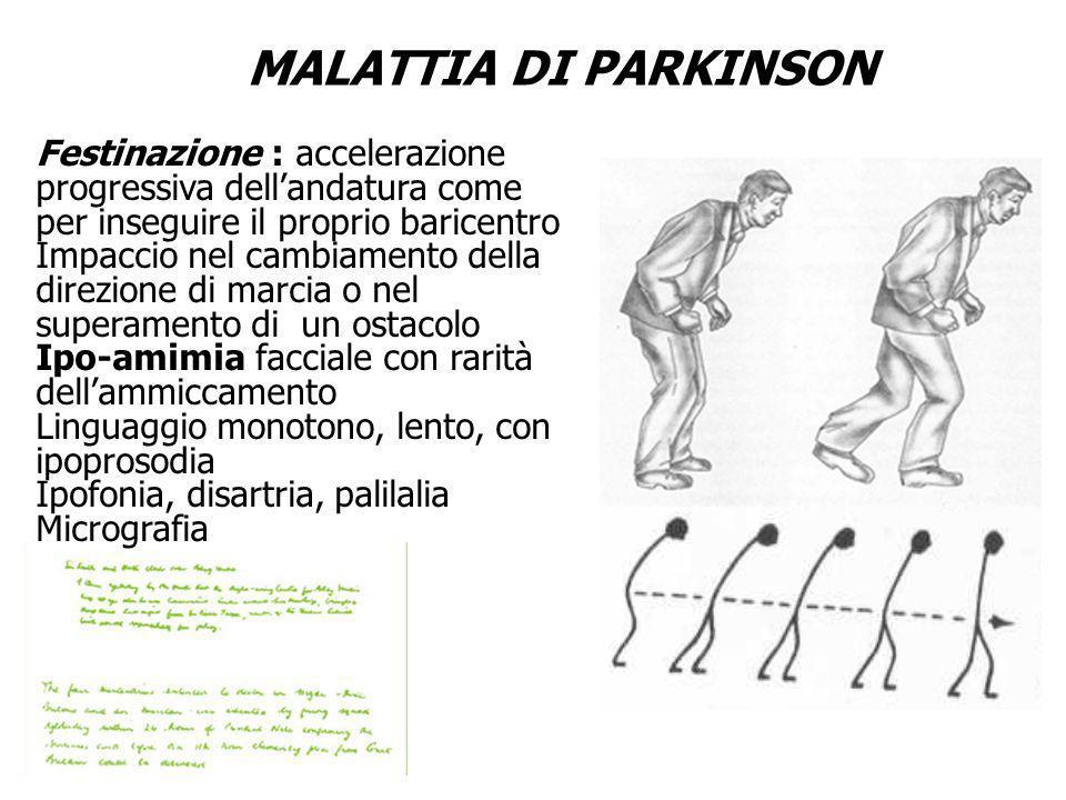 MALATTIA DI PARKINSON Festinazione : accelerazione progressiva dell'andatura come per inseguire il proprio baricentro.