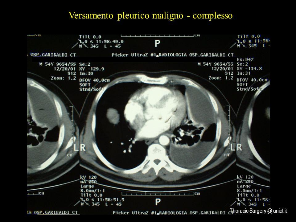 Versamento pleurico maligno - complesso