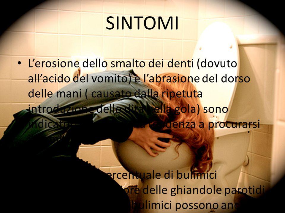 SINTOMI