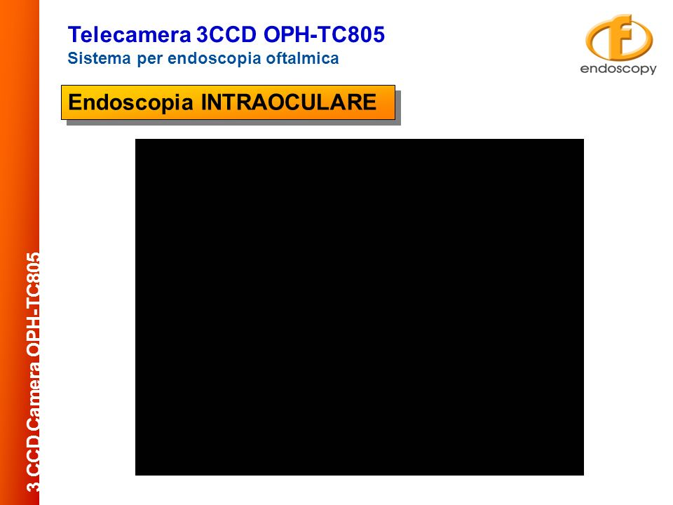 Endoscopia INTRAOCULARE