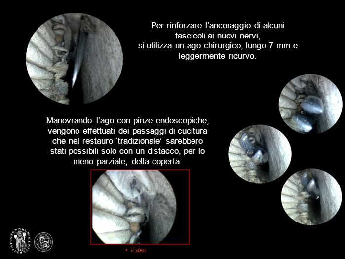 Per rinforzare l'ancoraggio di alcuni fascicoli ai nuovi nervi, si utilizza un ago chirurgico, lungo 7 mm e leggermente ricurvo.