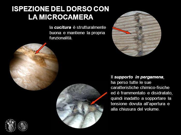 ISPEZIONE DEL DORSO CON LA MICROCAMERA