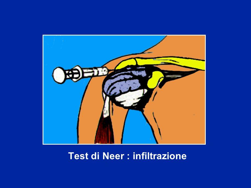 Test di Neer : infiltrazione