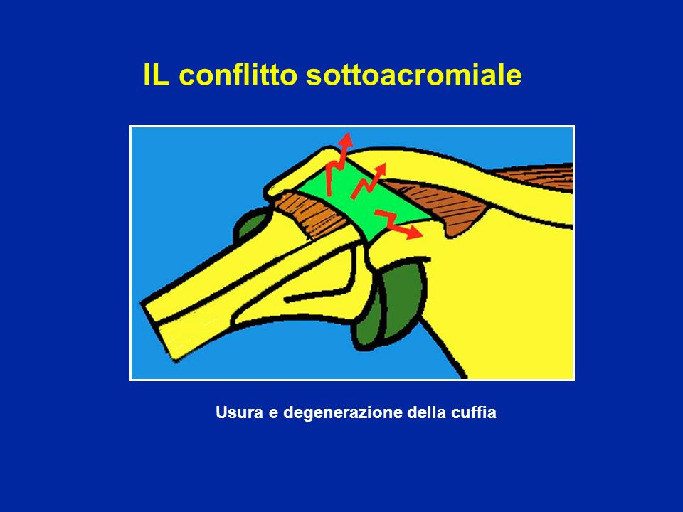 IL conflitto sottoacromiale