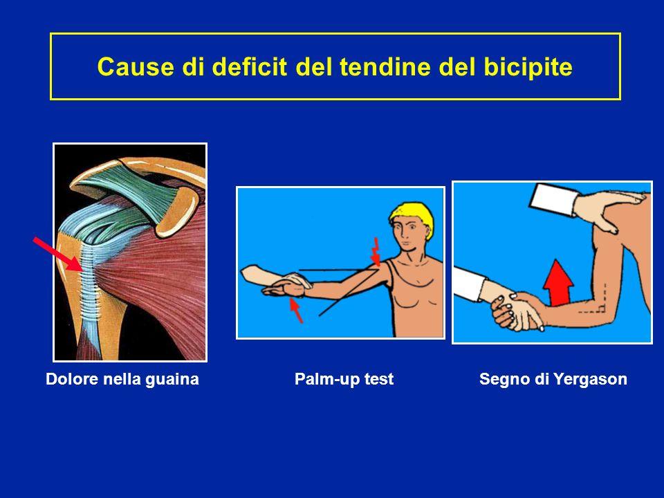 Cause di deficit del tendine del bicipite