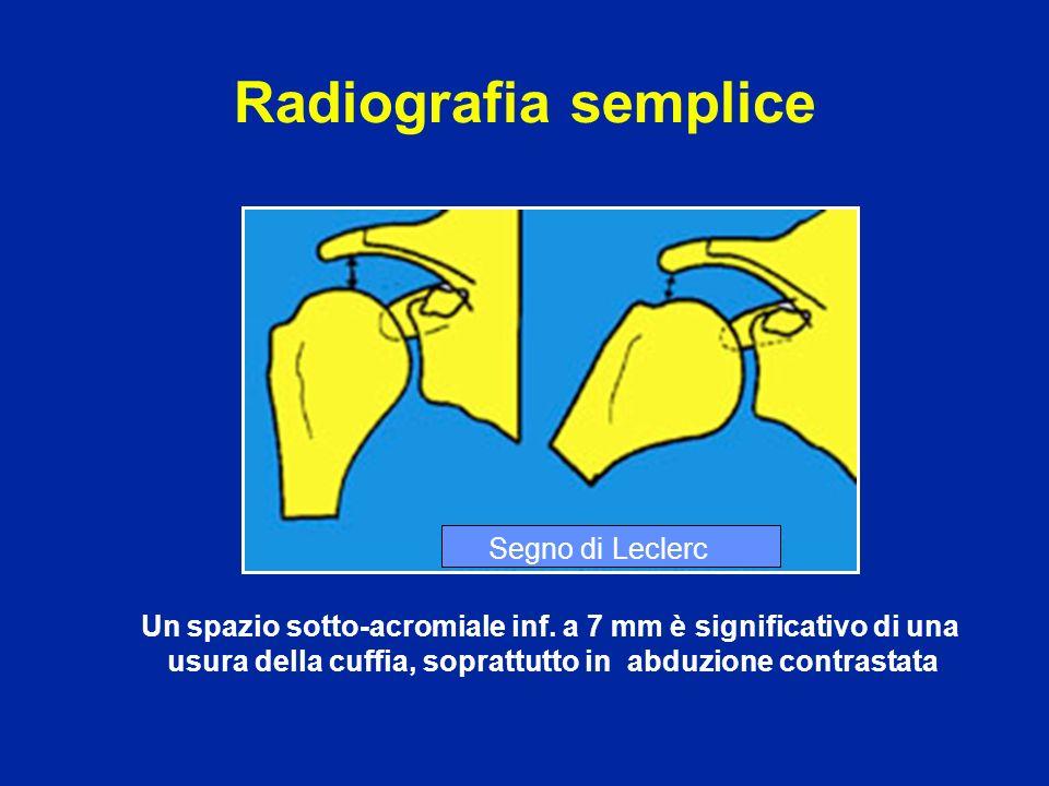 Radiografia semplice Segno di Leclerc