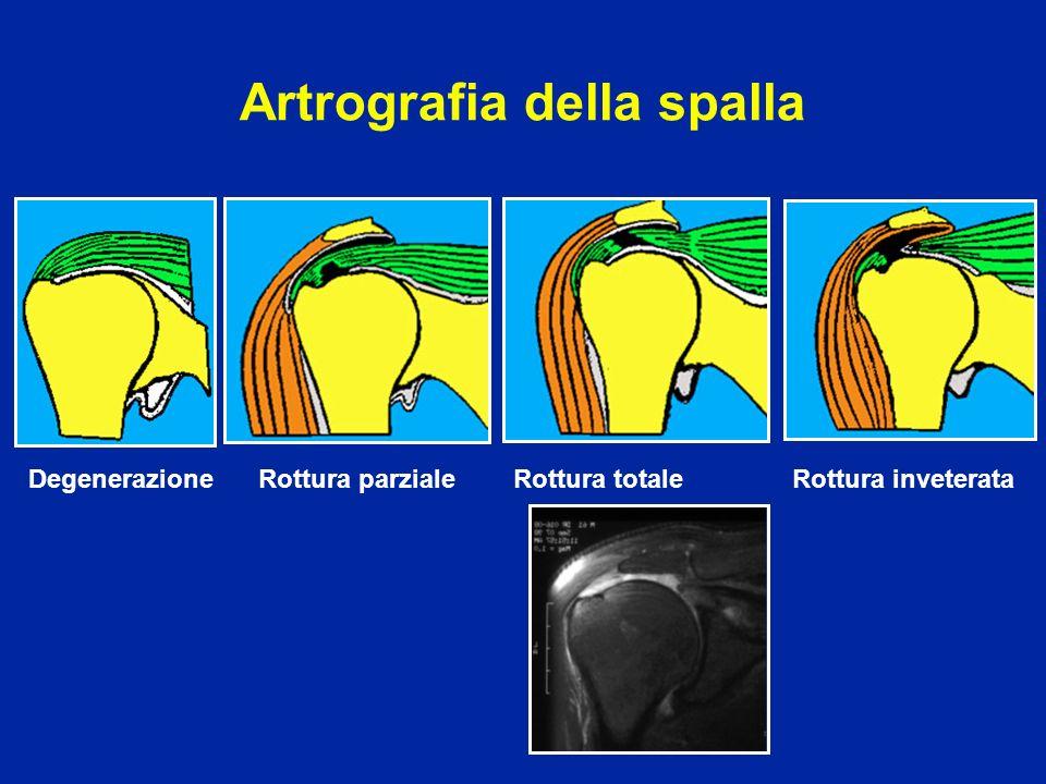 Artrografia della spalla