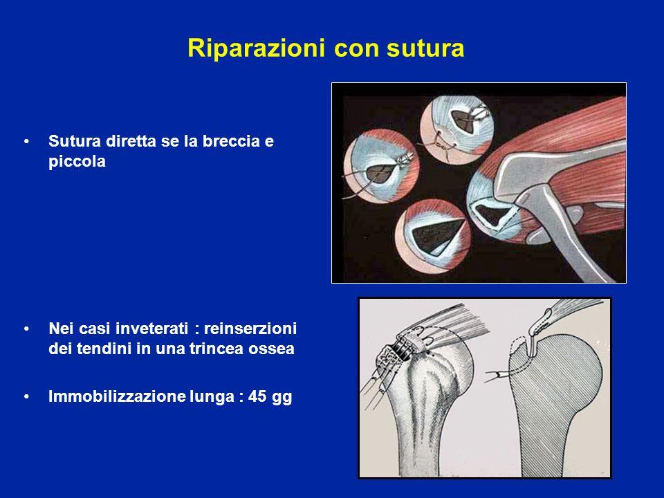 Riparazioni con sutura