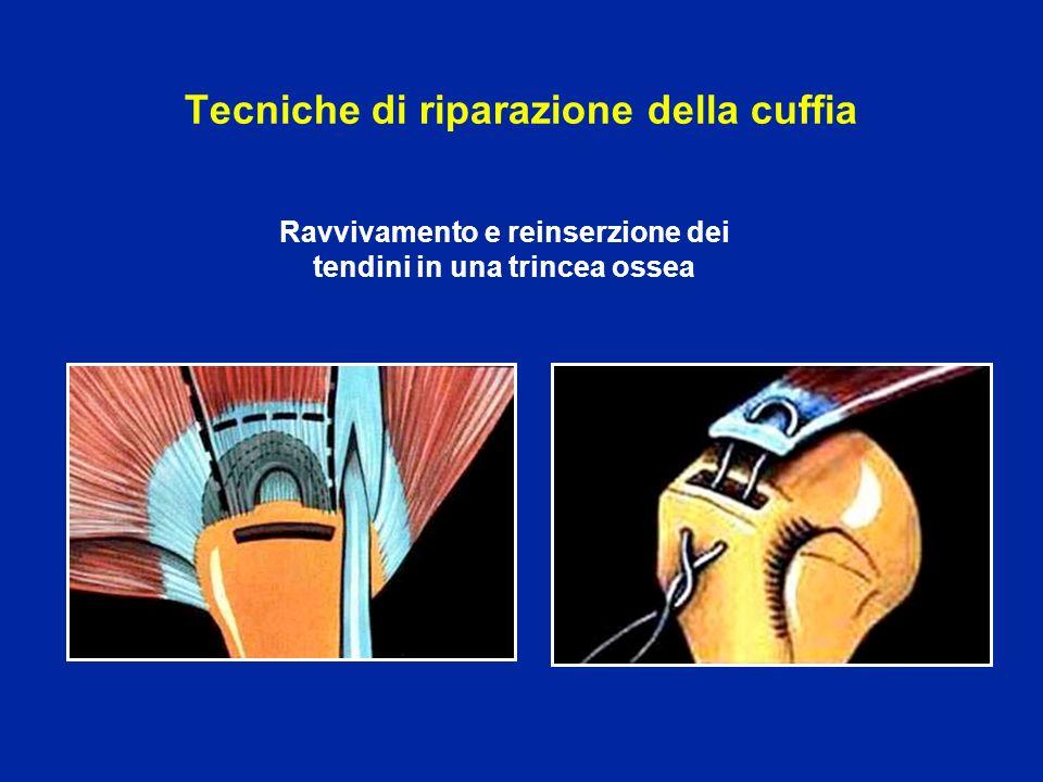 Tecniche di riparazione della cuffia
